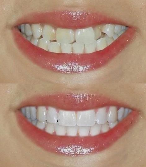 художественная реставрация зубов фото до и после