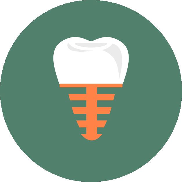 Имплантация зубов в клинике СлавДент