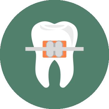 3. Ортодонтия — исправление прикуса в клинике СлавДент